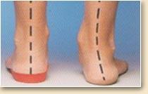 e38690d3e99 Zvýšením podélné klenby nohy a podložením vnitřní části paty v rozmezí 5 až  15 stupňů dle stupně valgozity docílíme správného postavení dětské nohy v  obuvi.